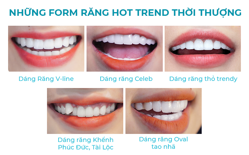 những form răng hot trend thười thượng