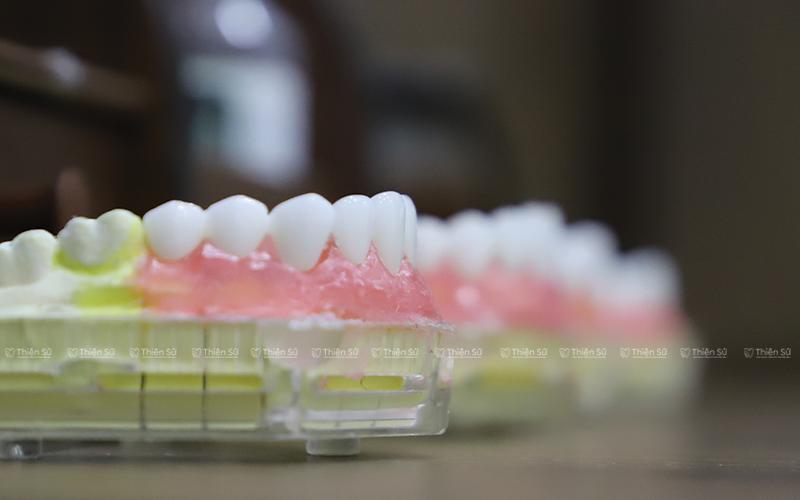 Răng sứ thẩm mỹ là gì?